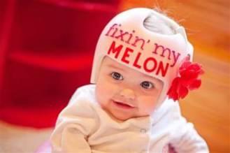 baby-helmet1